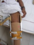 Thigh band removed so anterior aspect of the thigh is free ( sample photo: as the concerned patient with burn didn not allowed to put his photo on net.)